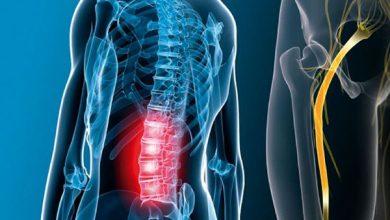 پيشگيري از درد سیاتیک