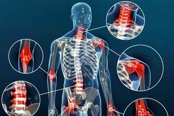 آرتروز چیست و چه درمانی دارد؟